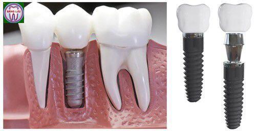 Trồng răng implant sau bao lâu thì được cắt chỉ ?