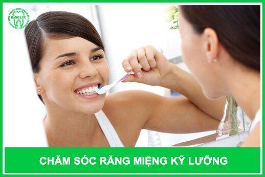 chăm sóc răng khểnh