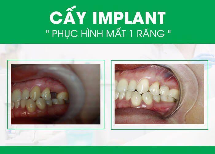 Thời gian cấy ghép răng implant trong bao lâu