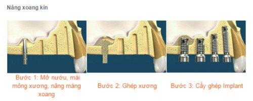 Trồng răng implant kết hợp nâng xoang hàm và ghép xương