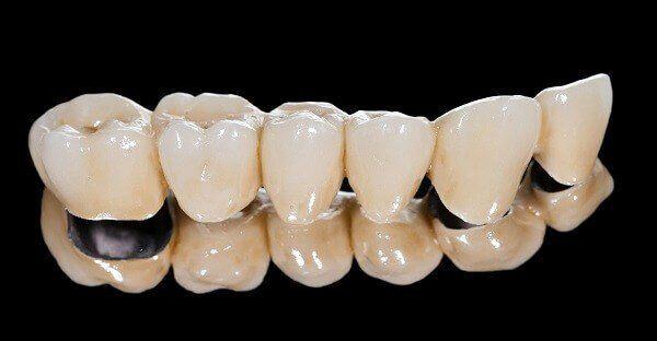 Trồng răng sứ Titan ở đâu tốt an toàn và hiệu quả