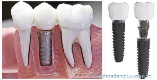 Trụ răng giả implant có bị hỏng không ?