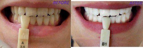 Tuổi tác có ảnh hưởng tới màu sắc răng không ?