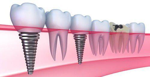 Tuổi tác có ảnh hưởng tới việc cấy ghép implant