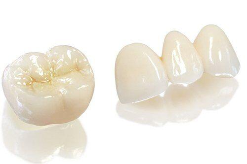 Tuổi thọ răng sứ Lava Plus kéo dài trong bao lâu?
