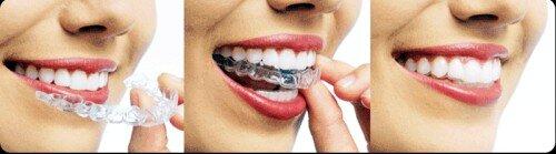 Ưu điểm của niềng răng mắc cài kim loại thế hệ mới