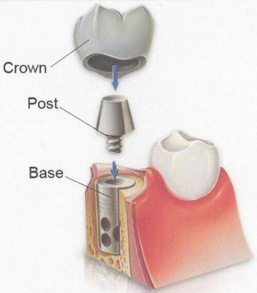 Ưu điểm của trụ răng Osstem