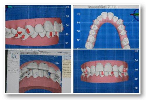 Ưu điểm niềng răng invisalign điều trị hô