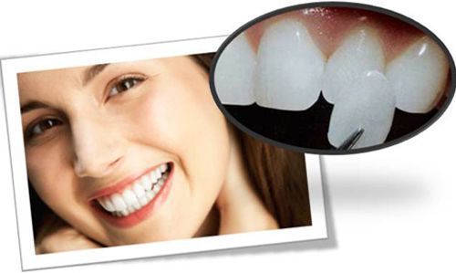 Phương pháp chữa triệt để vàng răng do yếu tố nội sinh
