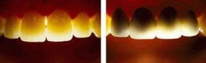 Ưu Điểm Nổi Bật Của Răng Sứ CERCON