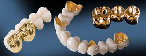 Ưu và nhược điểm của răng sứ kim loại?