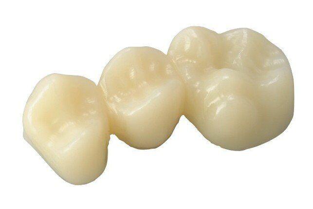 Ưu và nhược điểm của răng sứ Lava Plus
