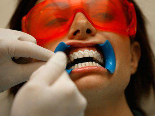 Vàng răng do yếu tố nội sinh chữa được không ?