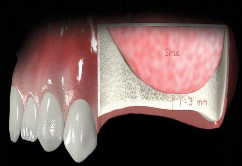 Các kỹ thuật ghép xương trong implant nha khoa