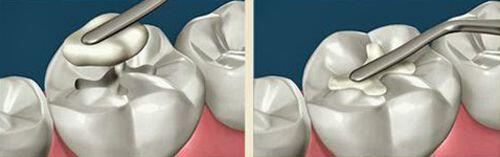 Trám răng bằng vật liệu composite