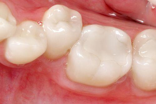 Trám răng cho tình trạng thiếu sản men răng