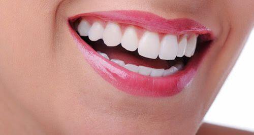 Các loại vật liệu trám răng mà bác sĩ khuyên dùng