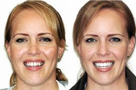 Răng sứ veneer có tốt không