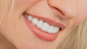 Răng sứ veneer mặt dán sứ thẩm mỹ cao cấp
