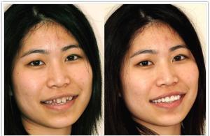 Răng sứ Veneer có tốt không? 2
