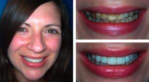 Bọc răng sứ veneer ở đâu tốt tại tphcm