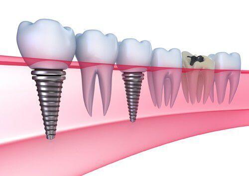Vì sao cần Implant