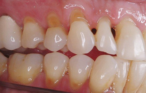 Ê buốt răng do thẩm mỹ răng không đúng cách