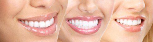 Sau khi tẩy trắng răng bị ê buốt là vì sao?