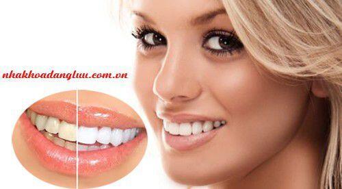 Vì sao răng bị ố vàng ?