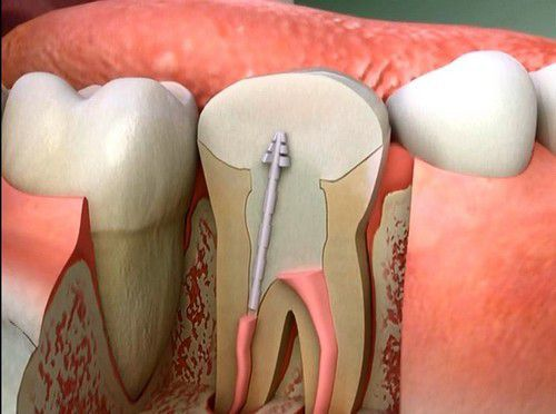 Hiện tượng răng bị chết tủy