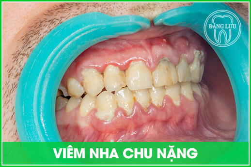 viêm nha chu nặng làm mất răng