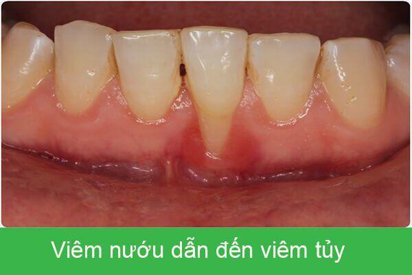 viêm tủy răng do viêm nướu gây ra