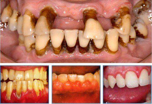 Dấu hiệu và triệu chứng của đau răng do bệnh tủy răng