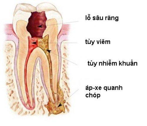 Viêm quanh chóp răng