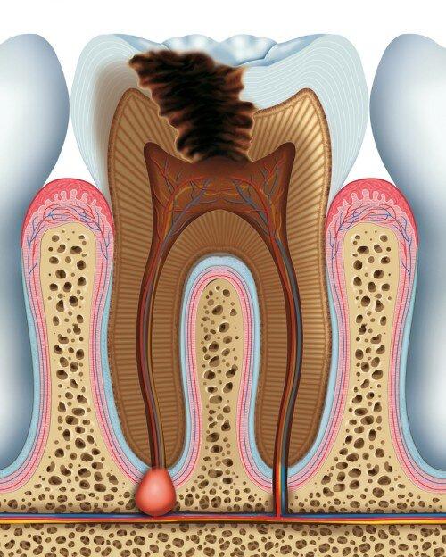 Làm sao để phát hiện bệnh viêm quanh chóp răng ?