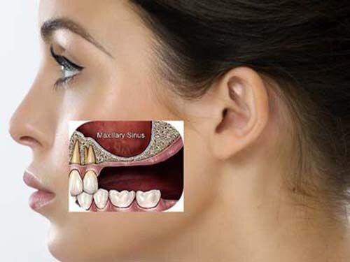 Những đối tượng không nên làm răng implant