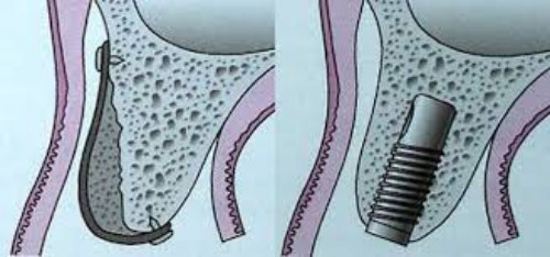 Viêm xoang hàm ảnh hưởng thế nào đến răng ?