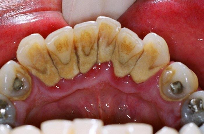 cao vội răng có tốt không