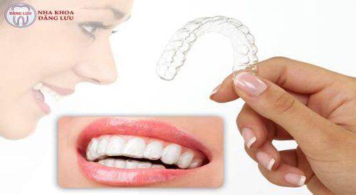 niềng răng không mắc cài -2