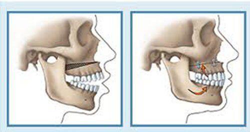 Ghép xương trong implant là gì ?