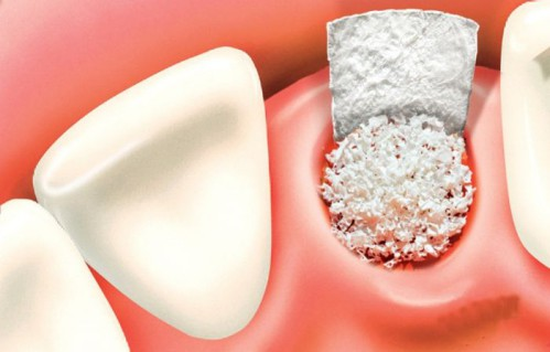 nâng xoang hàm trong cấy ghép implant là gì ?