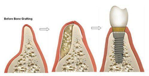 Trồng răng khi bị tiêu xương có phức tạp không ?