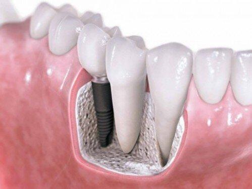 Các trường hợp cần nâng xoang trong cấy ghép implant